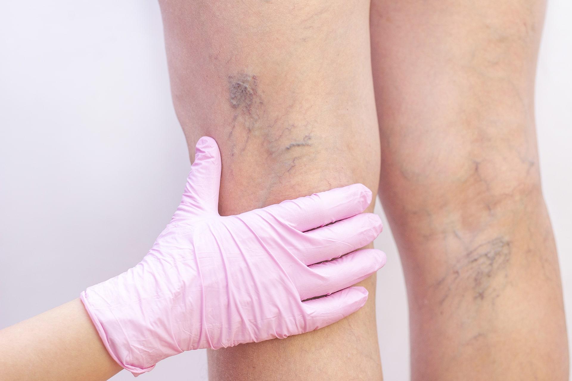 ¿Qué son las venas varicosas?
